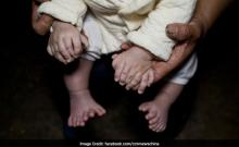 Meet Hong Hong, Chinese Boy Born With 31 Fingers And Toes