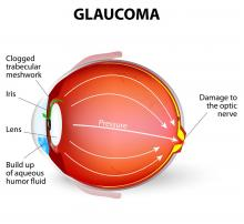 '11 pc people at risk for glaucoma'
