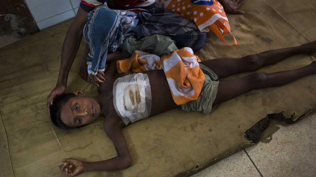 Bangladesh hospital struggles to cope with Rohingya wounds