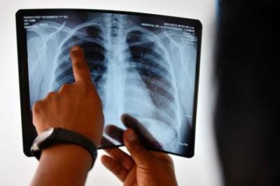 World lags badly on targets to slash TB, HIV, obesity: study