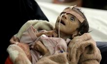 UN warns if no Yemen aid access, world will see largest famine in decades