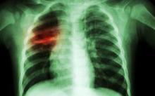 UN summit on TB seeks to put spotlight on killer disease
