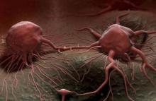 Cancers 'rising around the world'