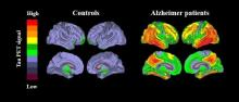 Scientists discover way to destroy cause of Alzheimer's