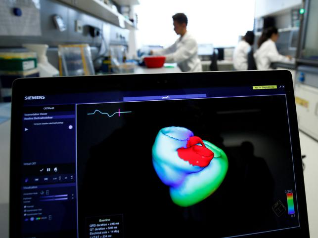 Technology of early warning for heart attacks invented