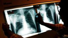 New TB test could save hundreds of thousands of children: scientists