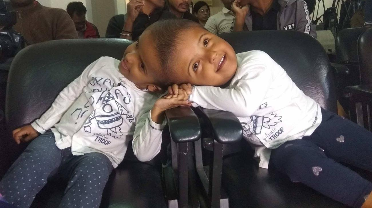 Conjoined twins leave for Hungary tonight